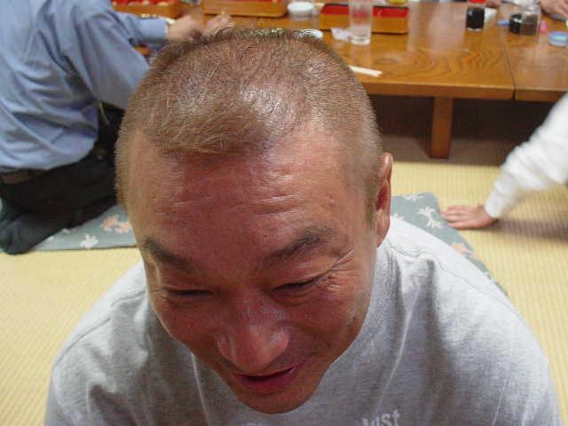 芸能人のハゲ・薄毛さんいらっしゃ~い             中野浩一は自毛植毛器を使っている!?!?             コメントコメントする