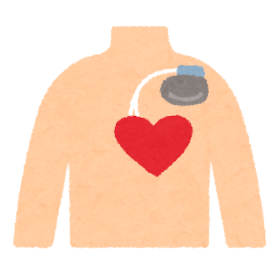 medical_pacemaker_body