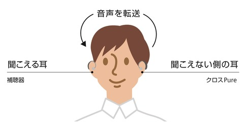 クロス補聴器 (2)