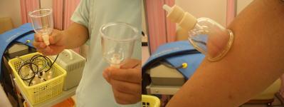 えがお整骨院の吸玉療法(カッピング療法)