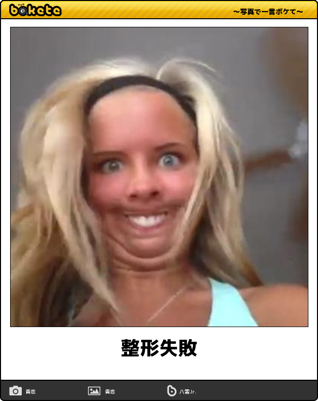 日本人女が韓国で整形し失敗! テレビに騙されるがテレビで報道されずwww