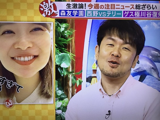【バイキング】親知らずを抜いて顔の腫れた指原莉乃に土田晃之が『顔が腫れていても可愛いね』【HKT48・STU48さっしー】