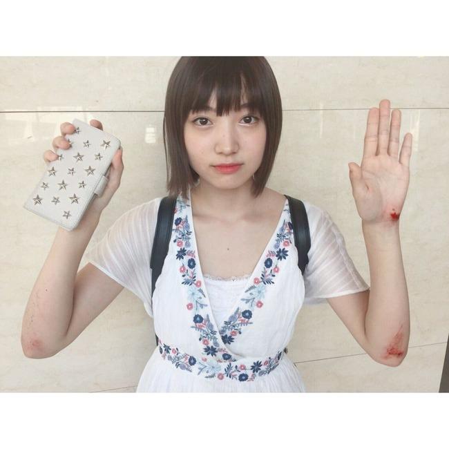 NMB48太田夢莉ちゃん、転倒して血まみれに?