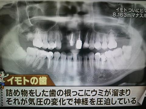 04-DVC00428