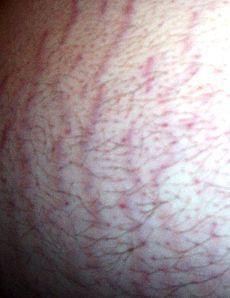 230px-Belly_Strech_Marks