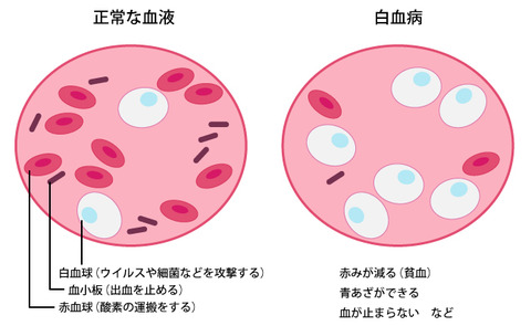 leukemia_top02