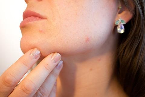 acne-1606765_640