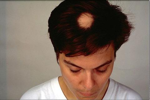 140904_YH_alopecia-670x445