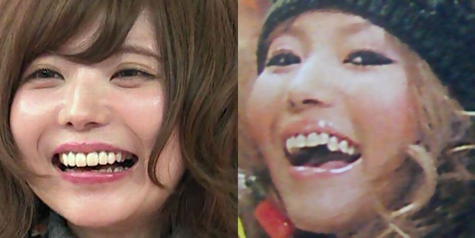 「益若つばさ 歯」の画像検索結果