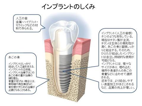 implant600