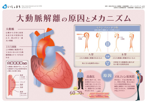160317-Aortic-dissection-1