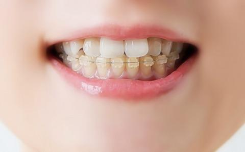 【怒報】無事に歯の矯正が終了したワイ…ブチ切れそう…その理由がこれ…