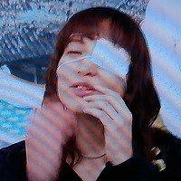 鈴木杏樹眼帯
