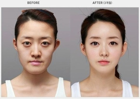 crazy_before_and_after_photos_of_korean_plastic_16