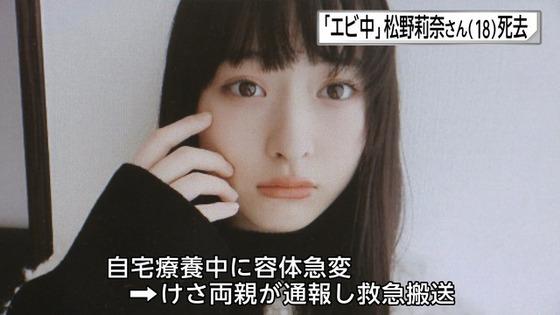 私立恵比寿中学・松野莉奈さん18歳で死去