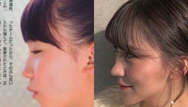 ★顔面変化★小嶋真子さん、鼻が伸びるwwwwwww【画像あり】