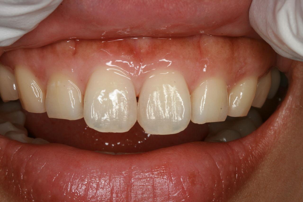 あけぼの歯科のblog