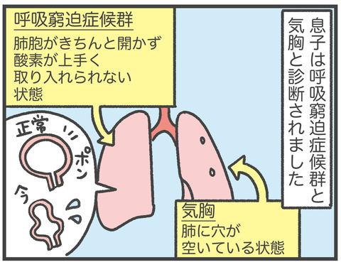 200915_出産04_03