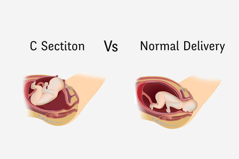 C-Section-Vs-Normal-Delivery-–-Everything-You