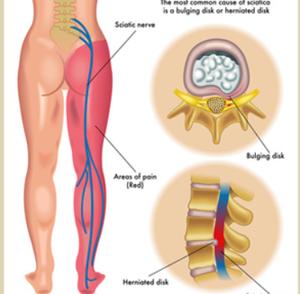 腰椎ヘルニア