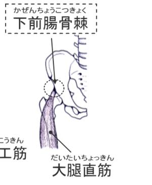 前下前腸骨棘