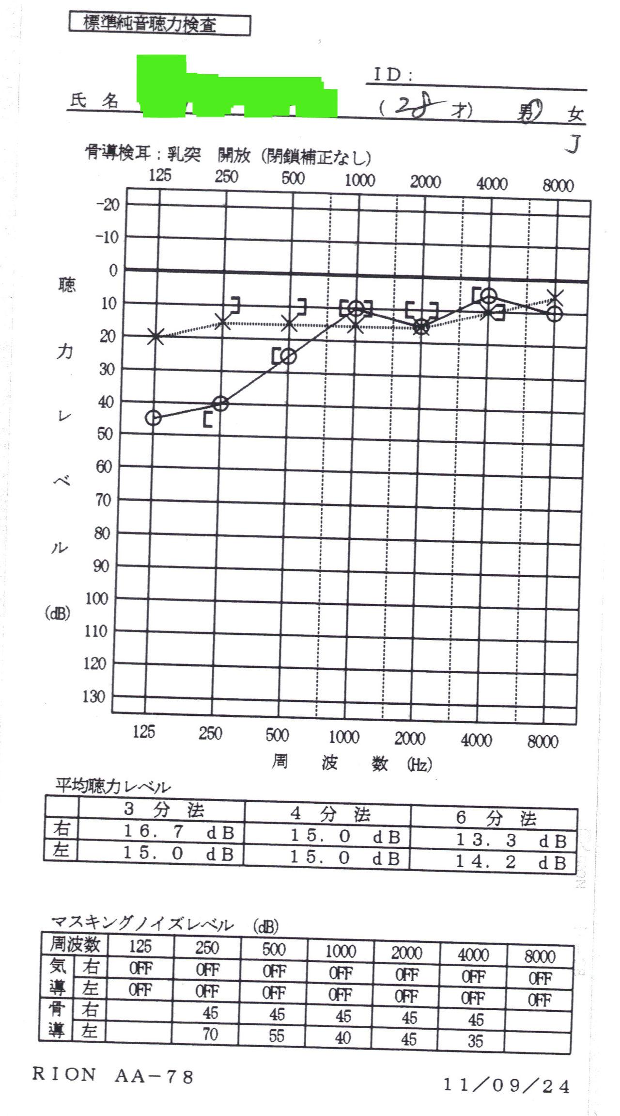 感 音 障害 性 低音 難聴 型