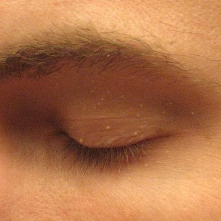 の ぶつぶつ 目 の 周り 白い