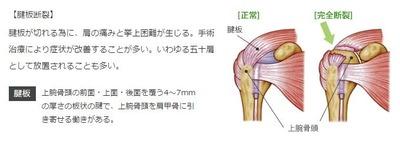 腱板断裂2