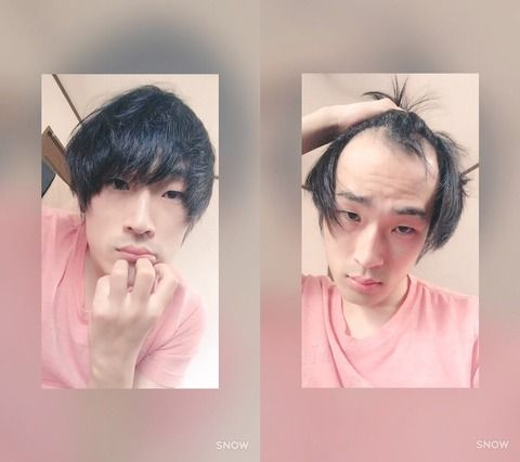 こんな感じで後ろから髪持ってきてハゲ隠してる奴wwwwwwwwwwwwwwwwwwwwww
