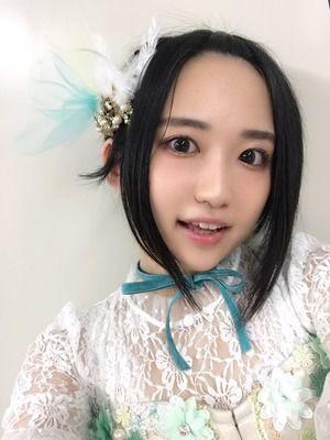【画像】声優の悠木碧さん、禿げ上がる