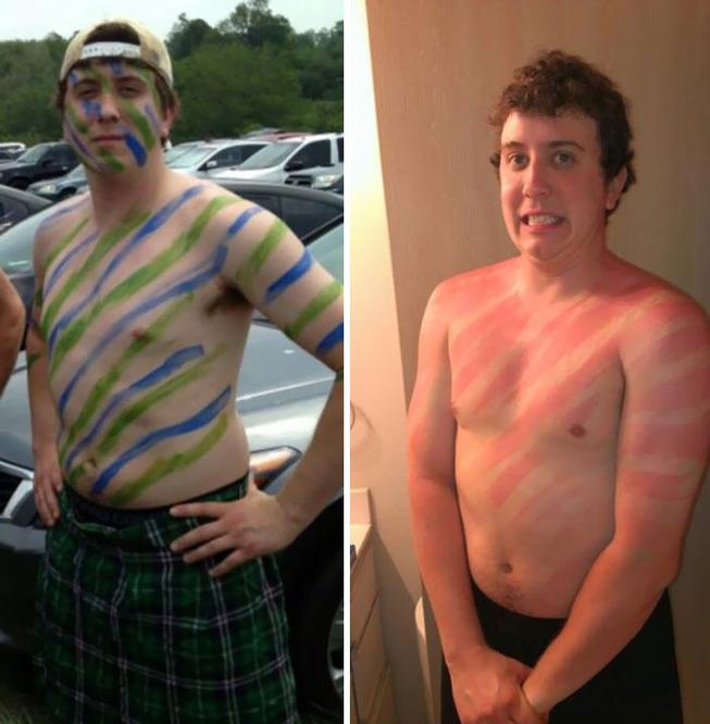 funny-sunburned-people-24-5f27becc6571b__700