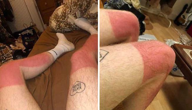 funny-sunburned-people-3-5f27d0abf2b97__700 (1)