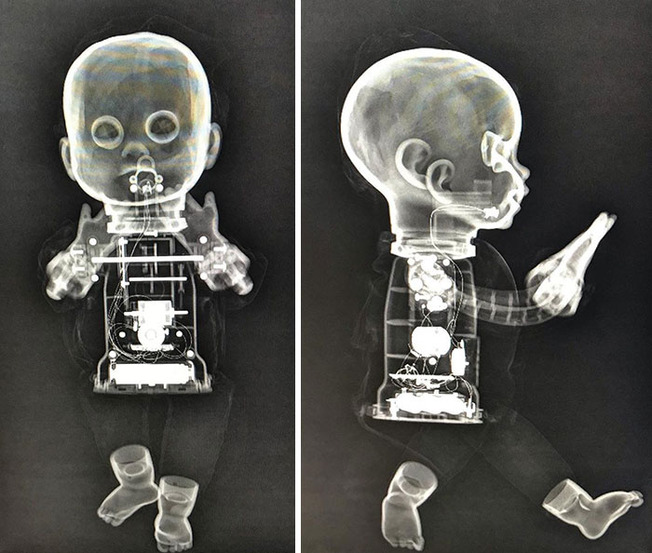 weird-interesting-funny-x-ray-pictures-24-5f58db39a5dc8__700