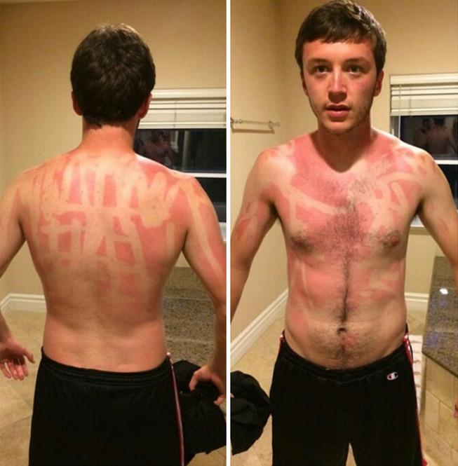 funny-sunburned-people-300-5f27b6888ac66__700