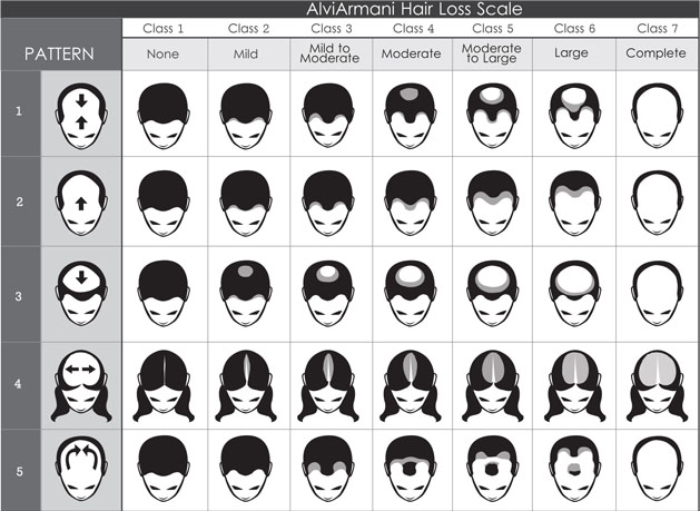 alvi-armani-hair-loss-scale