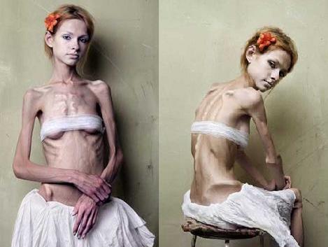 痩せすぎモデル