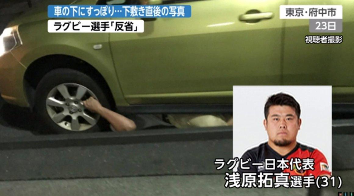 【画像】車に轢かれて軽傷のラグビー浅原選手、思ったよりがっつり轢かれてたことが判明wwww