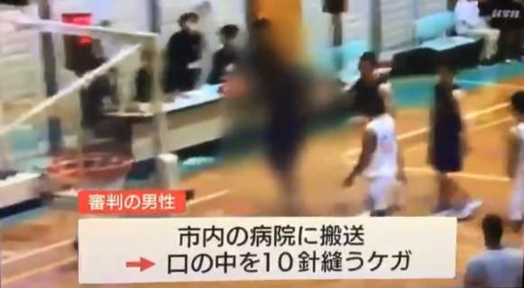 【悲報】高校バスケ試合中、強豪・延岡学園 留学生選手が審判の裁定を不服として殴打 審判病院搬送、没収試合 傷害事件に