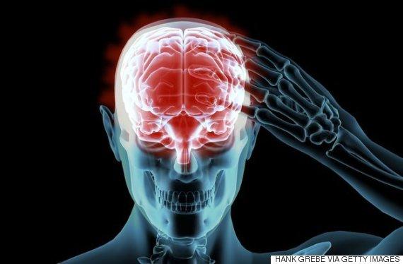 目の検査でアルツハイマー病早期発見の可能性、米研究