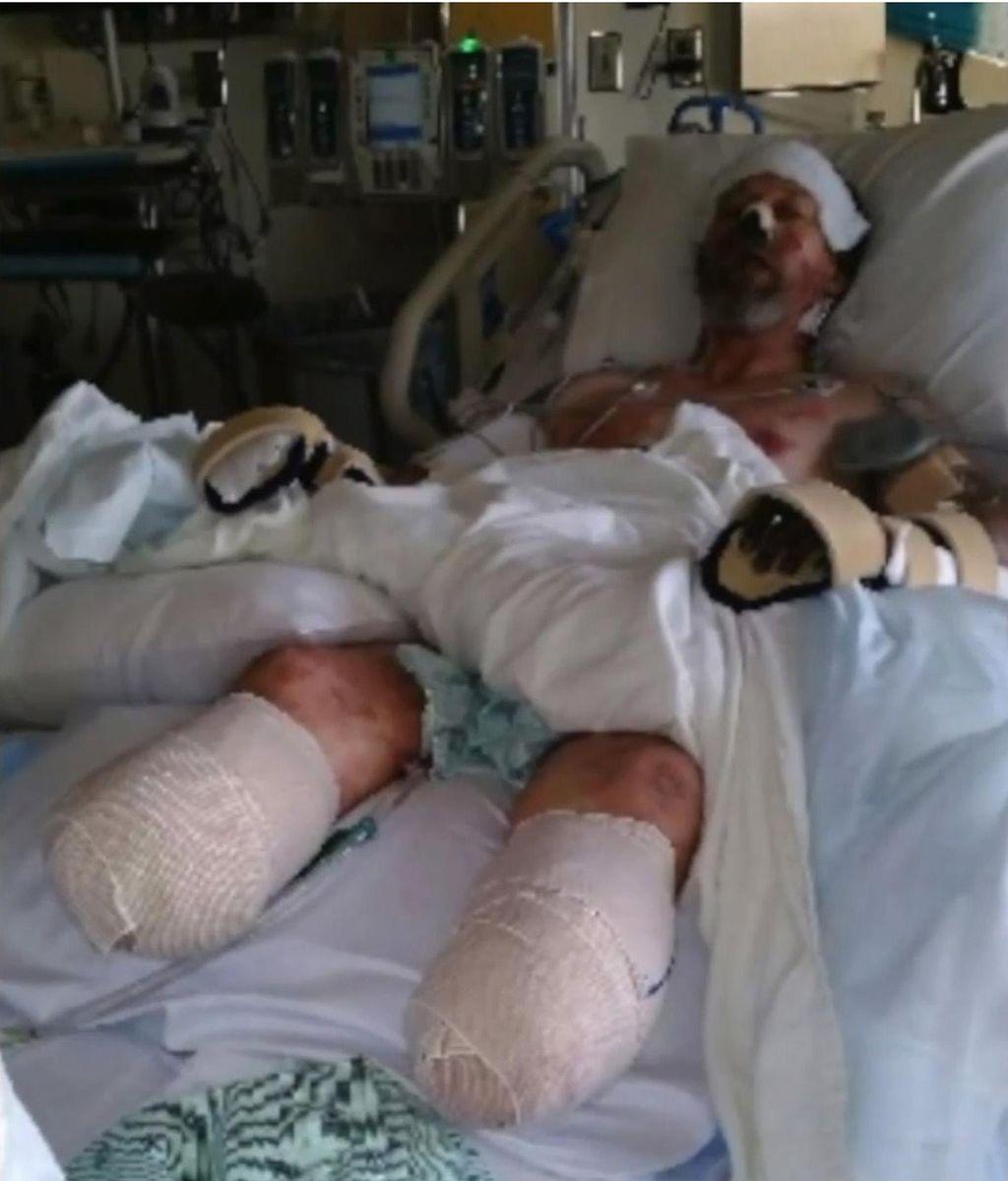 【衝撃】犬になめられて?米男性、感染症のために両手両足を切断