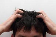 """【薄毛朗報】毛髪の""""もと""""大量に作る技術を開発、早ければ再来年にも実用化か"""