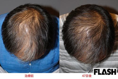 【朗報】1回60万円の注射で髪がよみがえる 奇跡のハゲ治療最前線!!!
