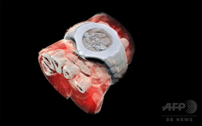【微グロ注意】人体の3DカラーX線写真の撮影に成功!