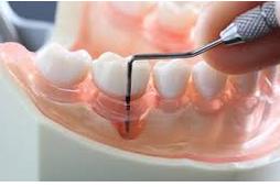 歯医者「歯石取っていきますね」彡(゚)(゚)「お願いします(歯石って何やろ…)」