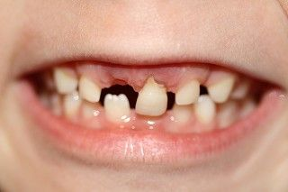 Tenacious-Tooth_s