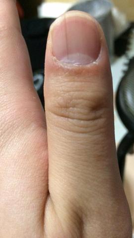 【画像】爪の中に黒い縦線があるんやが