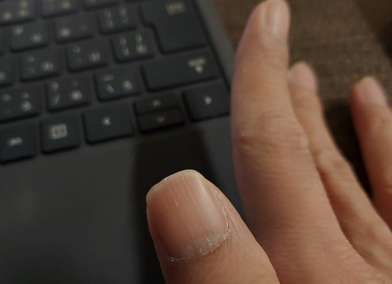 に 線 が 黒い 縦 入る 爪