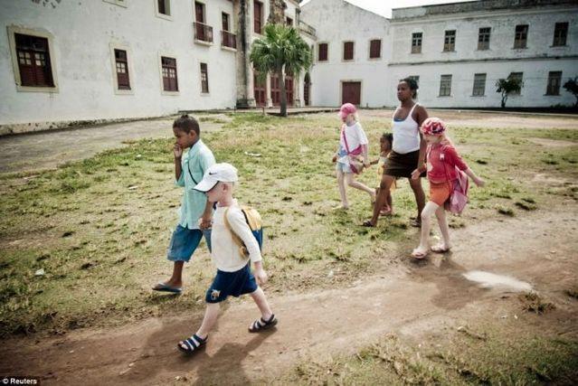 ブラジル人家族のアルビノの子供三人-001_3