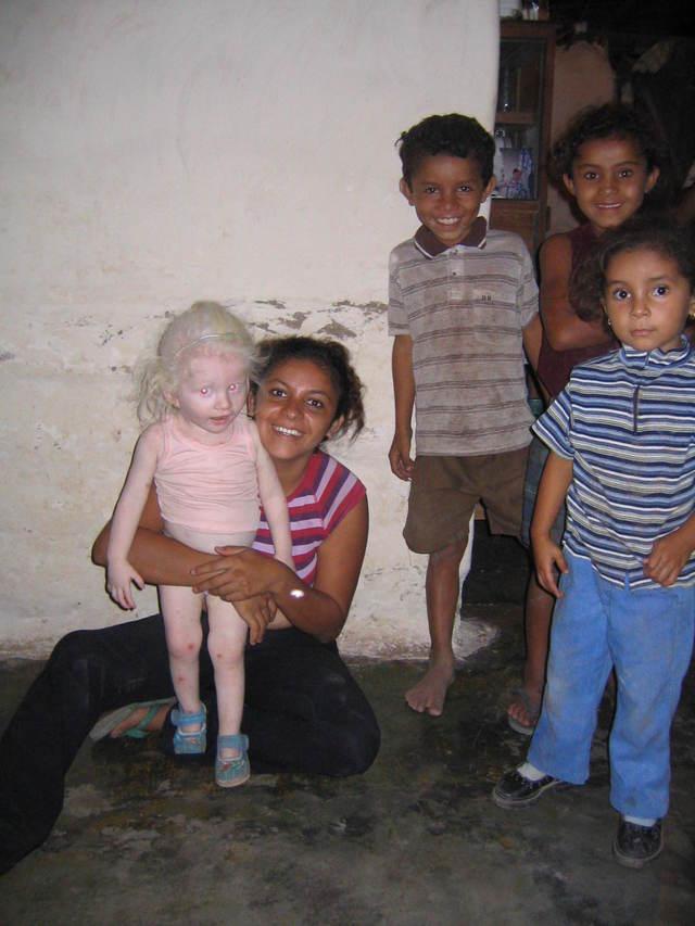 ブラジル人家族のアルビノの子供三人-056