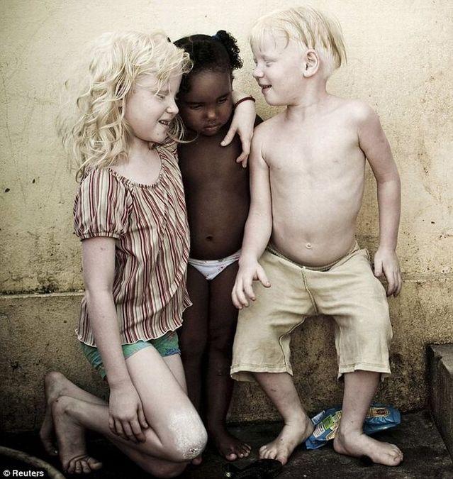 ブラジル人家族のアルビノの子供三人-001_2